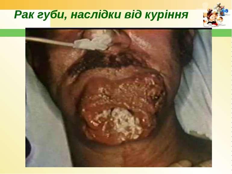 Рак губи, наслідки від куріння