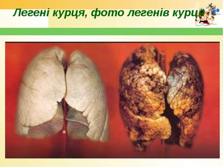 Легені курця, фото легенів курця