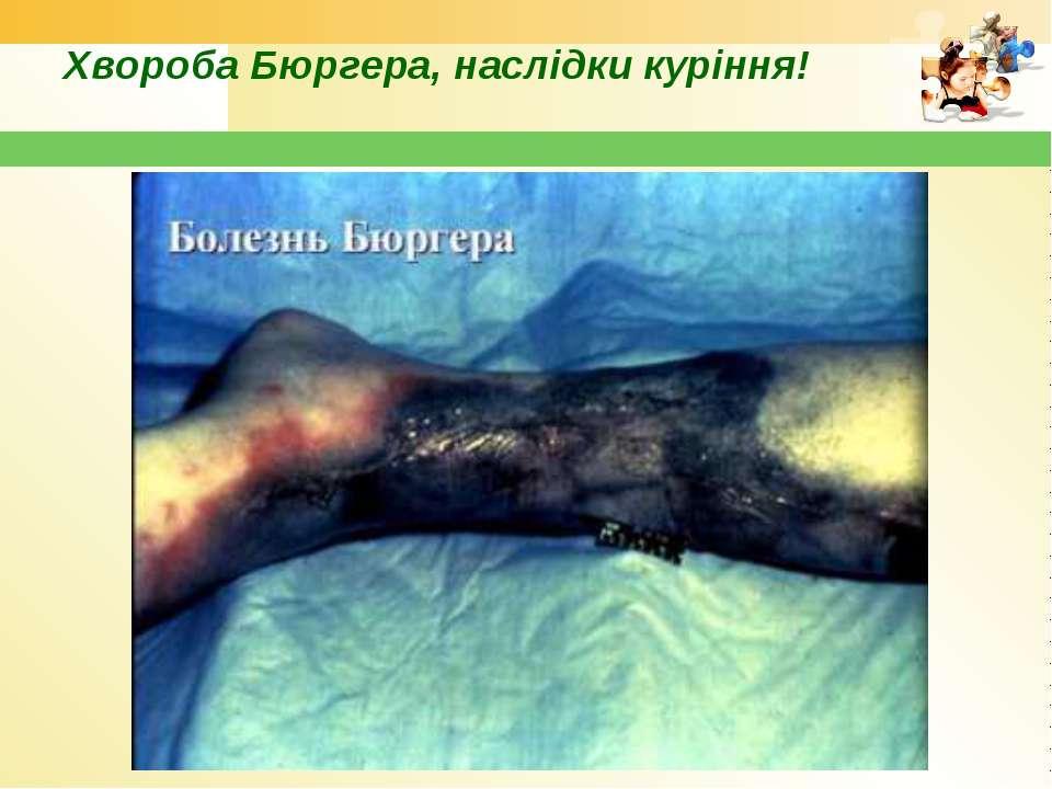 Хвороба Бюргера, наслідки куріння!