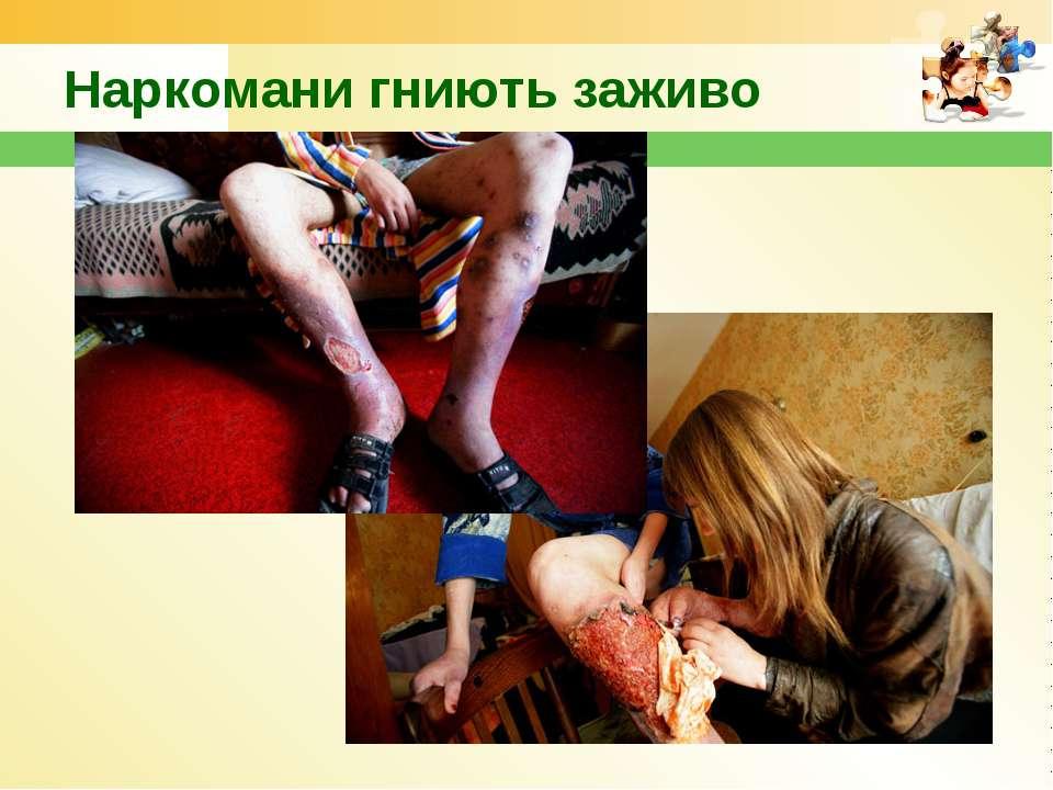 Наркомани гниють заживо