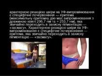 Характерною реакцією шкіри на УФ-випромінювання є специфічне почервоніння— е...