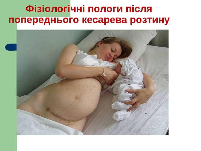 Фізіологічні пологи після попереднього кесарева розтину