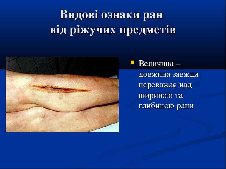 Видові ознаки ран від ріжучих предметів Величина – довжина завжди переважає н...