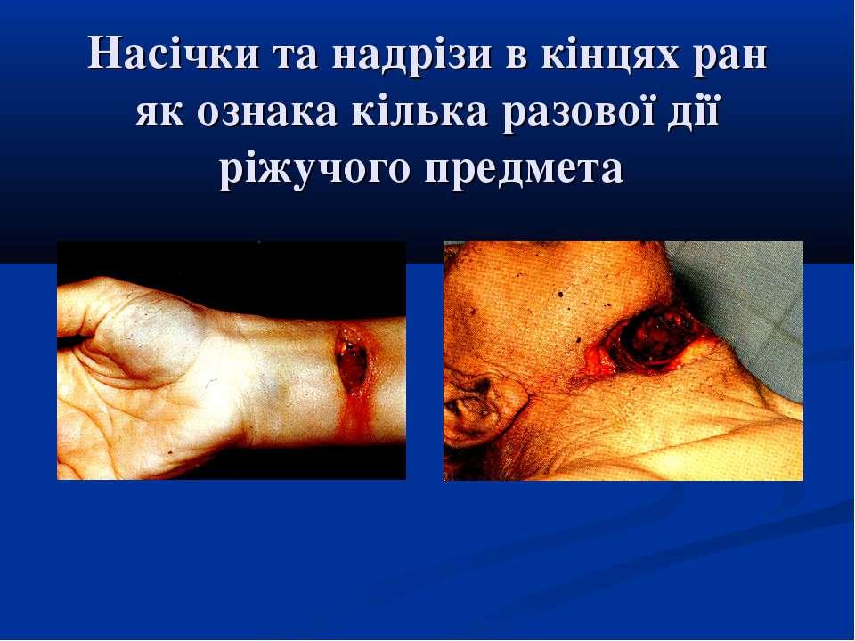 Насічки та надрізи в кінцях ран як ознака кілька разової дії ріжучого предмета
