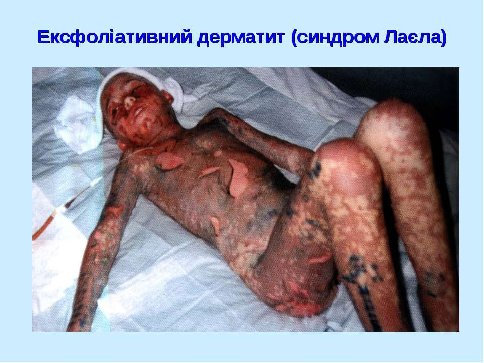 Ексфоліативний дерматит (синдром Лаєла)
