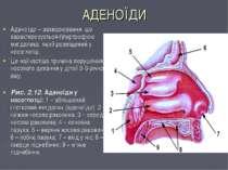 АДЕНОЇДИ Аденоїди – захворювання, що характеризується гіпертрофією мигдалика,...