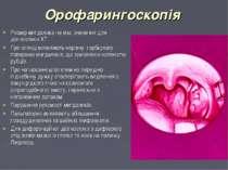 Орофарингоскопія Розмір мигдалика не має значення для діагностики ХТ При огля...