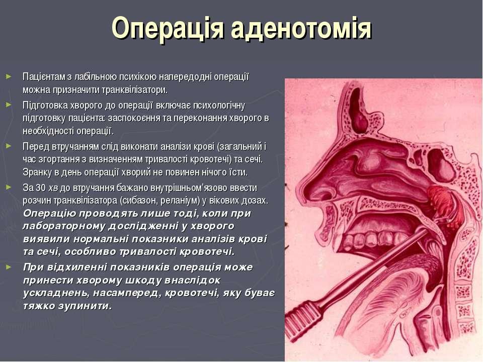 Операція аденотомія Пацієнтам з лабільною психікою напередодні операції можна...