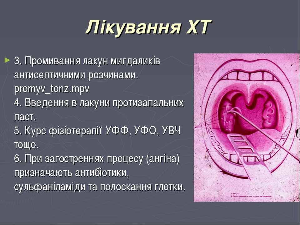 Лікування ХТ 3. Промивання лакун мигдаликів антисептичними розчинами. promyv_...