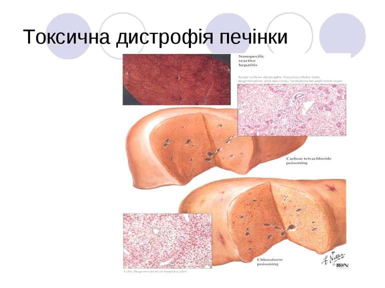 Токсична дистрофія печінки