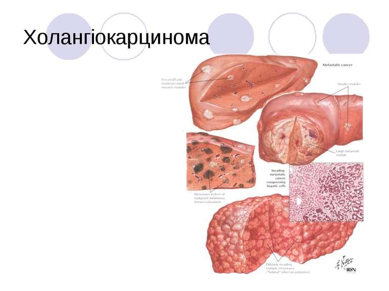 Холангіокарцинома