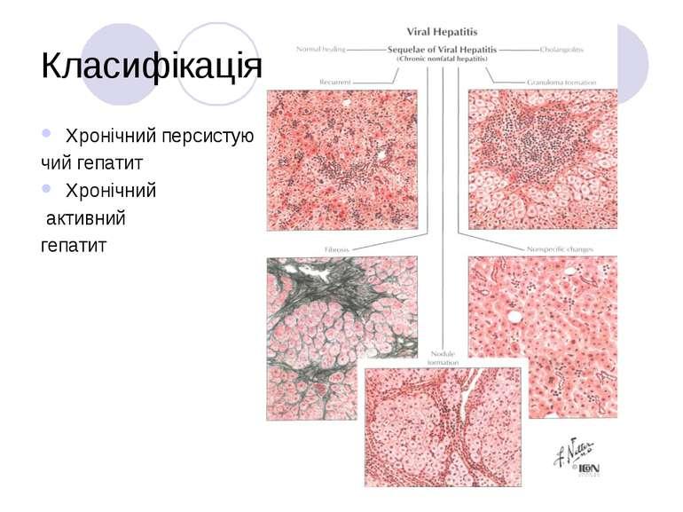 Класифікація Хронічний персистую чий гепатит Хронічний активний гепатит