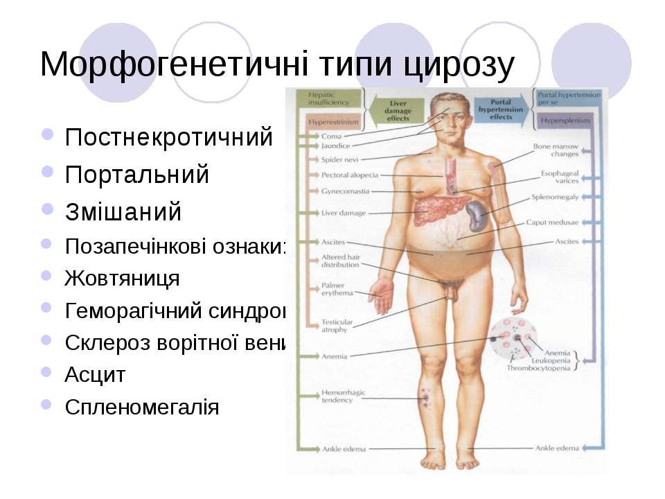 Морфогенетичні типи цирозу Постнекротичний Портальний Змішаний Позапечінкові ...