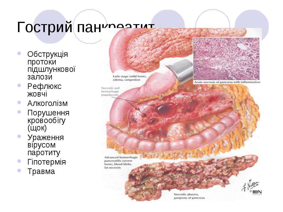 Гострий панкреатит Обструкція протоки підшлункової залози Рефлюкс жовчі Алког...