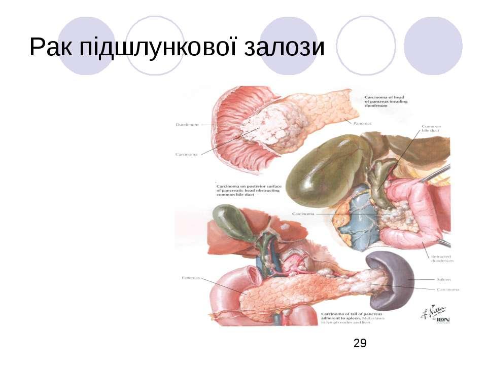 Рак підшлункової залози