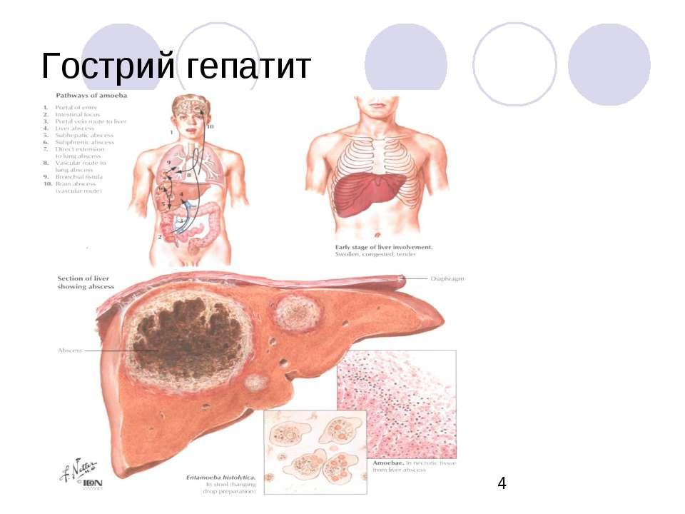 Гострий гепатит