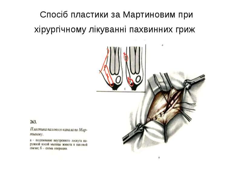 Спосіб пластики за Мартиновим при хірургічному лікуванні пахвинних гриж