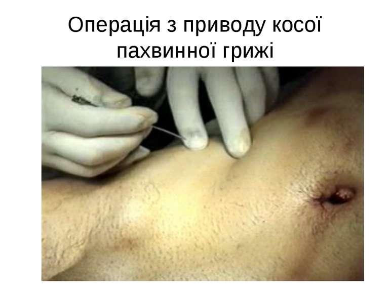 Операція з приводу косої пахвинної грижі