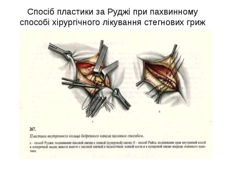 Спосіб пластики за Руджі при пахвинному способі хірургічного лікування стегно...