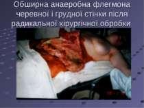 Обширна анаеробна флегмона черевної і грудної стінки після радикальної хірург...