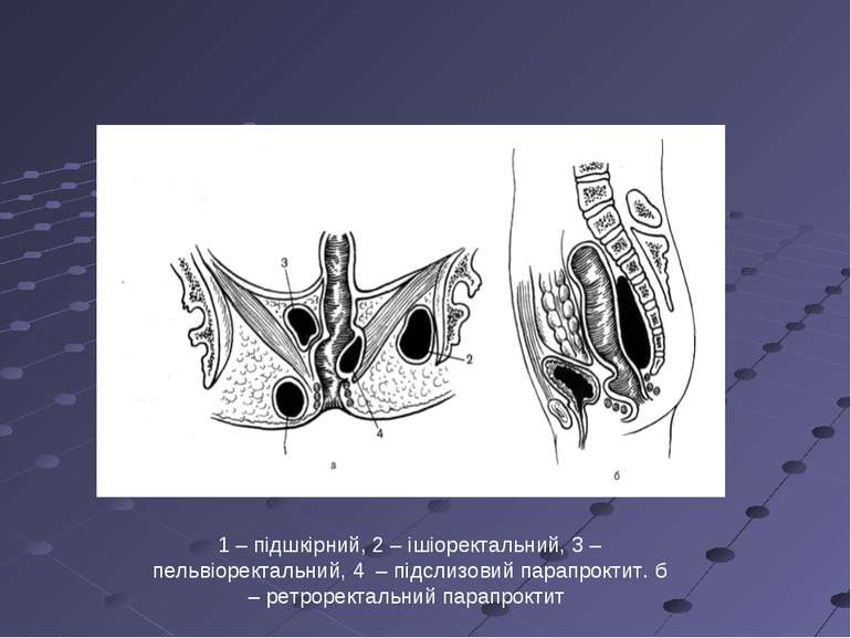 1 – підшкірний, 2 – ішіоректальний, 3 – пельвіоректальний, 4 – підслизовий па...