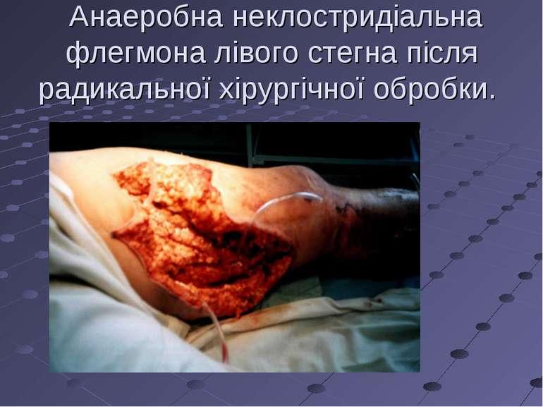 Анаеробна неклостридіальна флегмона лівого стегна після радикальної хірургічн...