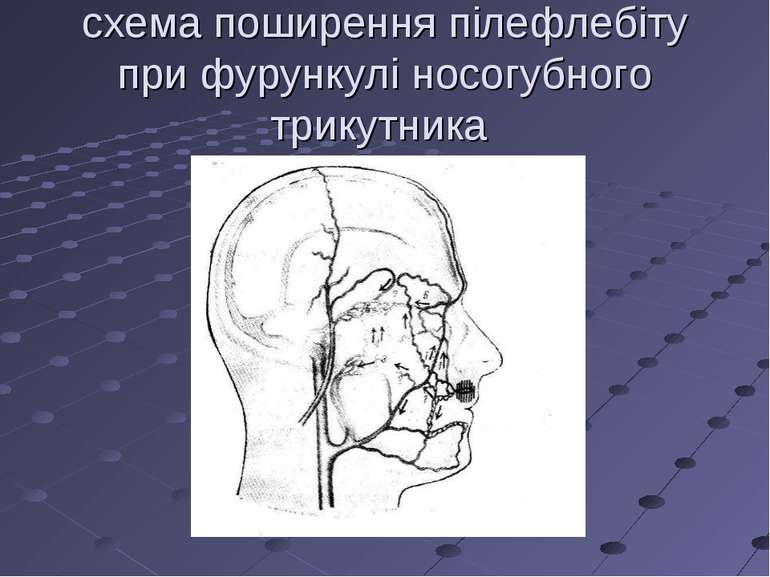 схема поширення пілефлебіту при фурункулі носогубного трикутника