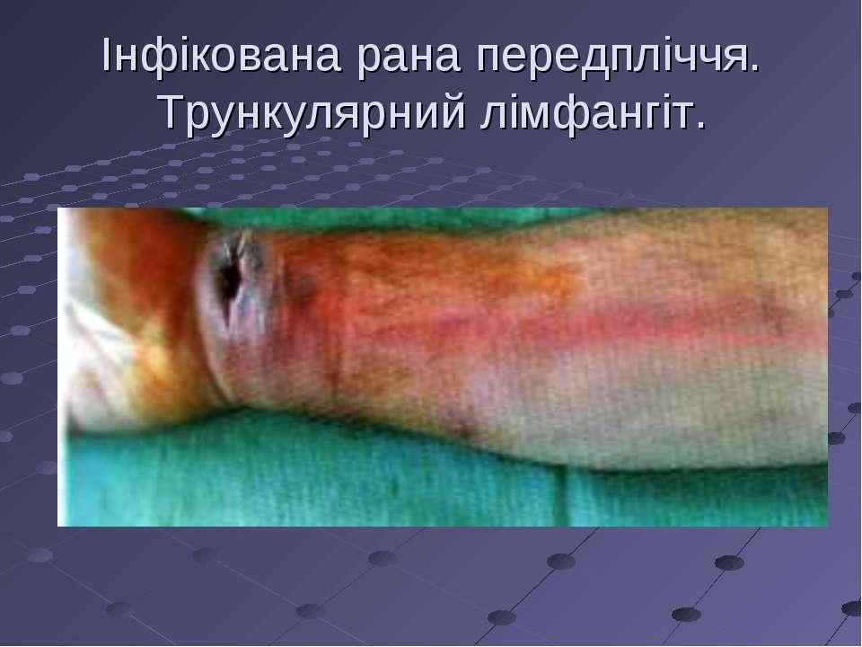 Інфікована рана передпліччя. Трункулярний лімфангіт.