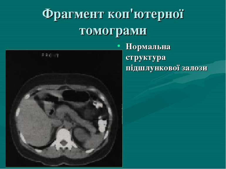 Фрагмент коп'ютерної томограми Нормальна структура пiдшлункової залози