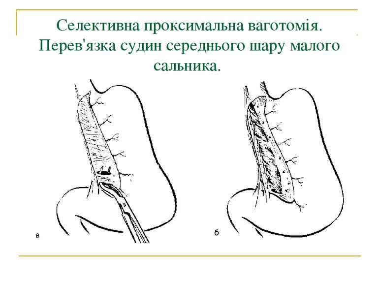 Селективна проксимальна ваготомія. Перев'язка судин середнього шару малого са...
