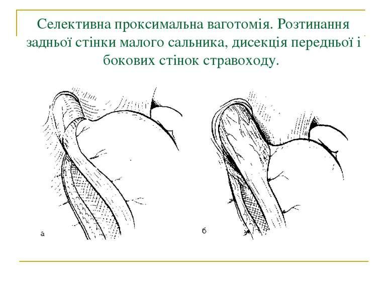 Селективна проксимальна ваготомія. Розтинання задньої стінки малого сальника,...