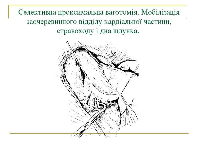Селективна проксимальна ваготомія. Мобілізація заочеревинного відділу кардіал...