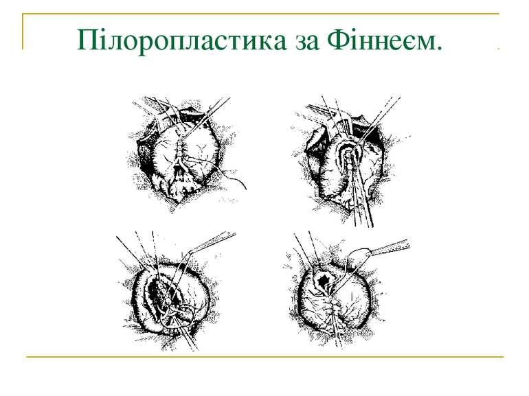 Пілоропластика за Фіннеєм.