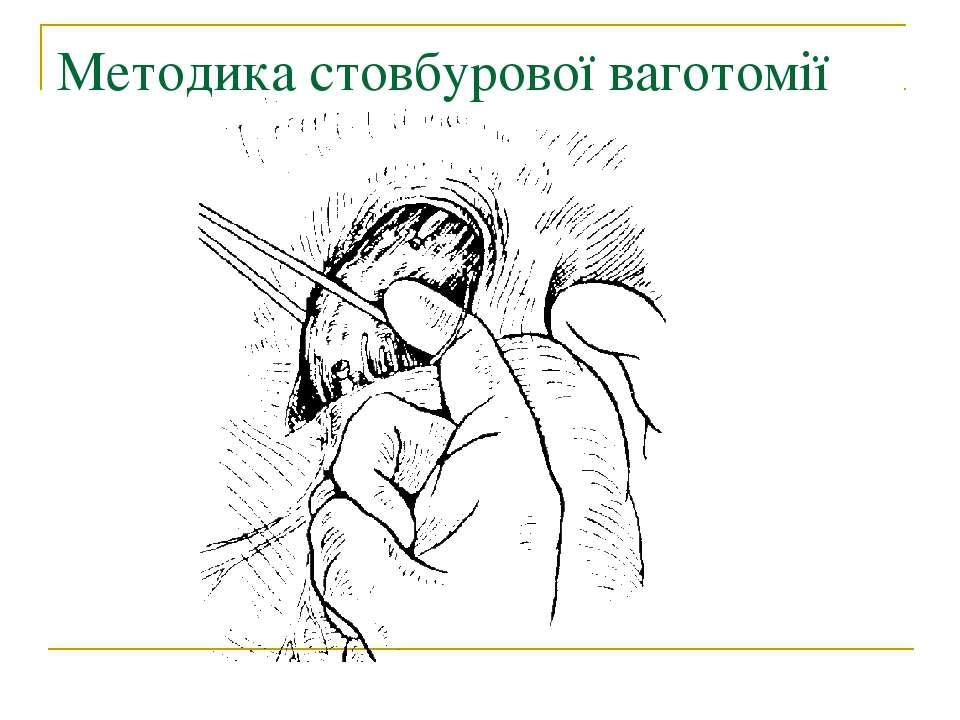 Методика стовбурової ваготомії