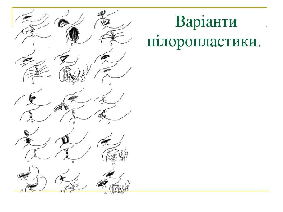 Варіанти пілоропластики.