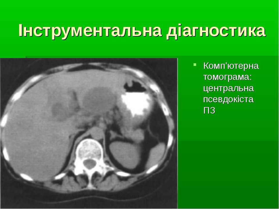 Інструментальна діагностика Комп'ютерна томограма: центральна псевдокіста ПЗ