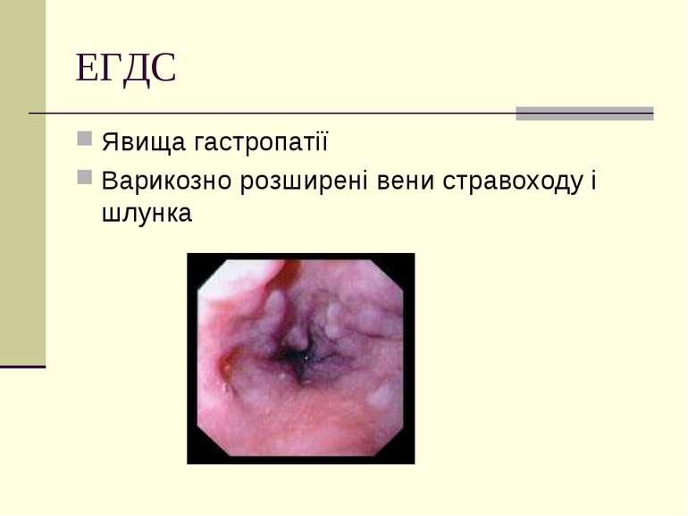 ЕГДС Явища гастропатії Варикозно розширені вени стравоходу і шлунка