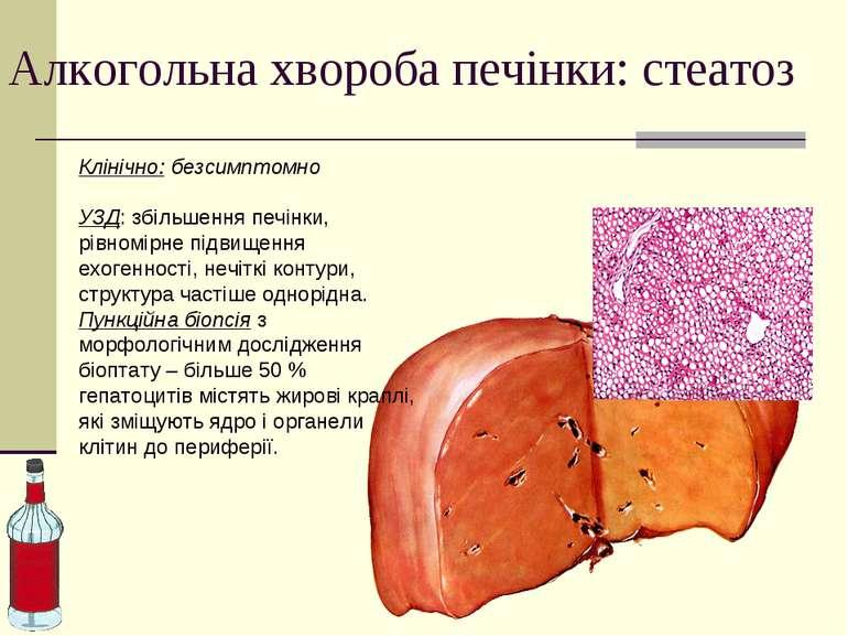 Алкогольна хвороба печінки: стеатоз Клінічно: безсимптомно УЗД: збільшення пе...