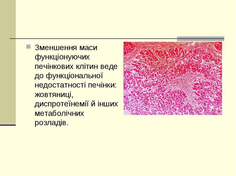 Зменшення маси функціонуючих печінкових клітин веде до функціональної недоста...