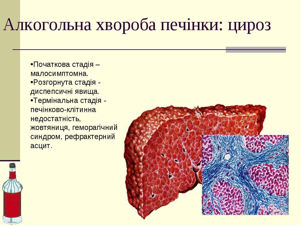 Алкогольна хвороба печінки: цироз Початкова стадія – малосимптомна. Розгорнут...