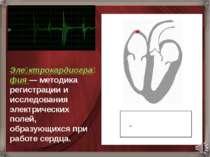 Эле ктрокардиогра фия— методика регистрации и исследования электрических пол...