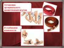 Остановка артериального кровотечения жгутом И сгибанием конечности
