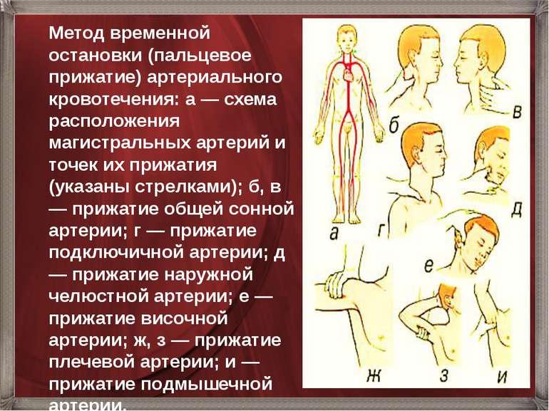 Метод временной остановки (пальцевое прижатие) артериального кровотечения: а ...