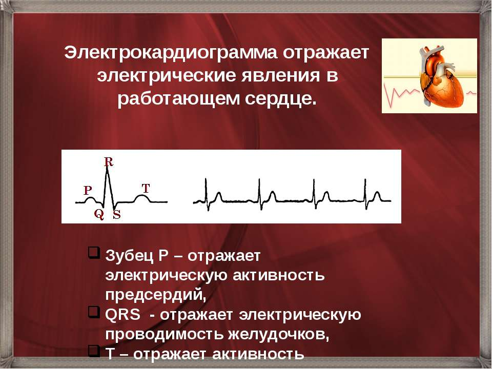 Электрокардиограмма отражает электрические явления в работающем сердце. Зубец...