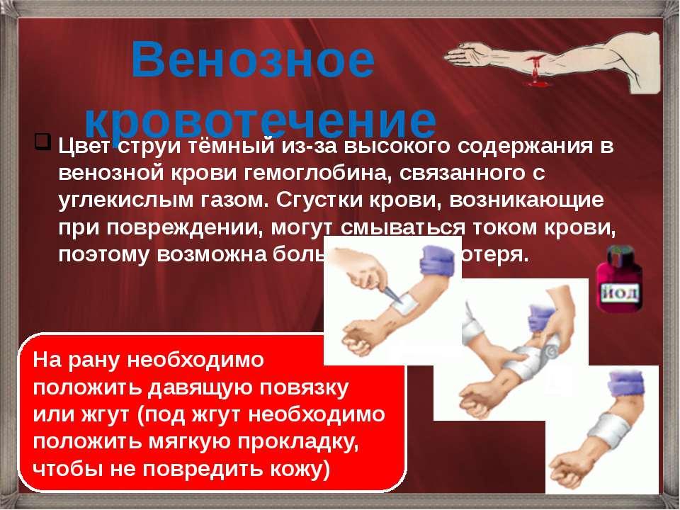 Венозное кровотечение Цвет струи тёмный из-за высокого содержания в венозной ...