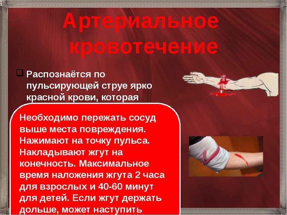 Артериальное кровотечение Распознаётся по пульсирующей струе ярко красной кро...
