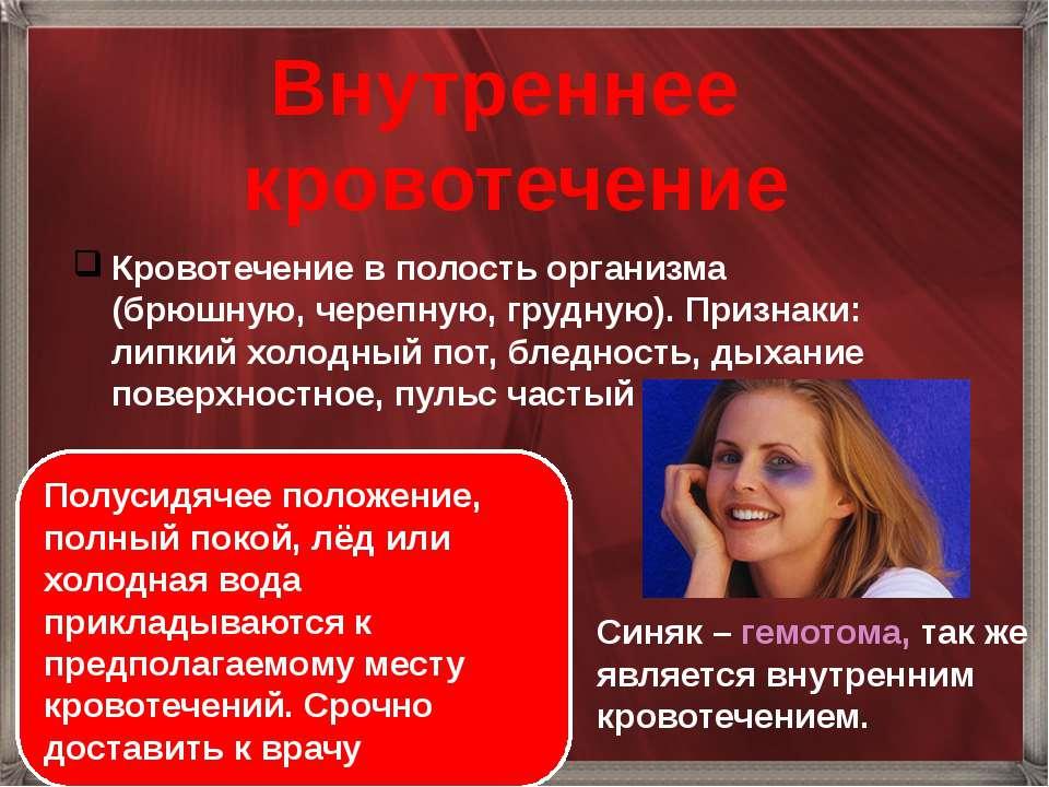 Внутреннее кровотечение Кровотечение в полость организма (брюшную, черепную, ...