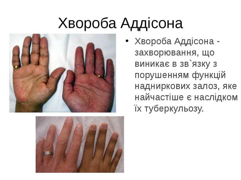 Хвороба Аддісона - захворювання, що виникає в зв`язку з порушенням функцій на...