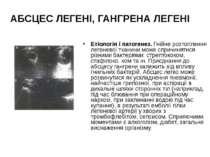 АБСЦЕС ЛЕГЕНІ, ГАНГРЕНА ЛЕГЕНІ Етіологія і патогенез. Гнійне розтоплення леге...