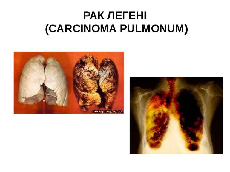 РАК ЛЕГЕНІ (CARCINOMA PULMONUM)